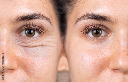Cuadros en Lienzo  A young woman shows the before and after results of successful blepharoplasty surgery, corrective procedure to remove puffy and swollen bags beneath the eye
