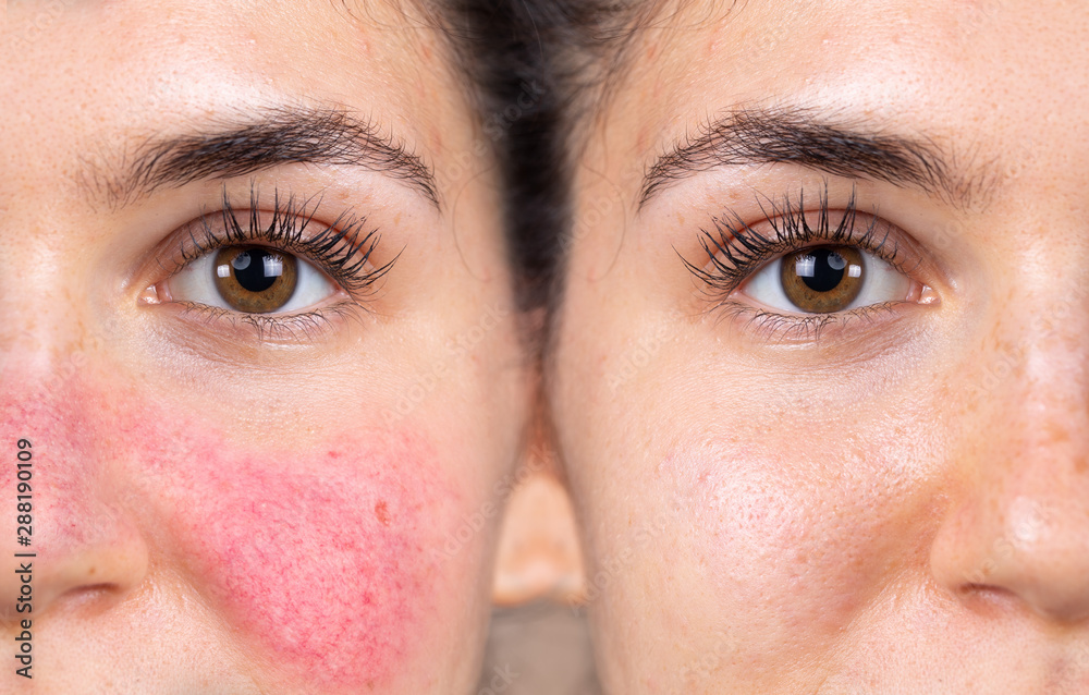 Fototapeta Before and after successful rosacea treatment on the face of a caucasian lady. Redness and visible blood vessels are all removed through laser surgery.