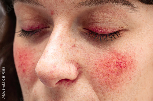 Obraz na plátně A close up view on the face of a young caucasian lady, suffering from a severe case of rosacea, with facial redness and dilated blood vessels of the eyelids, nose and cheeks