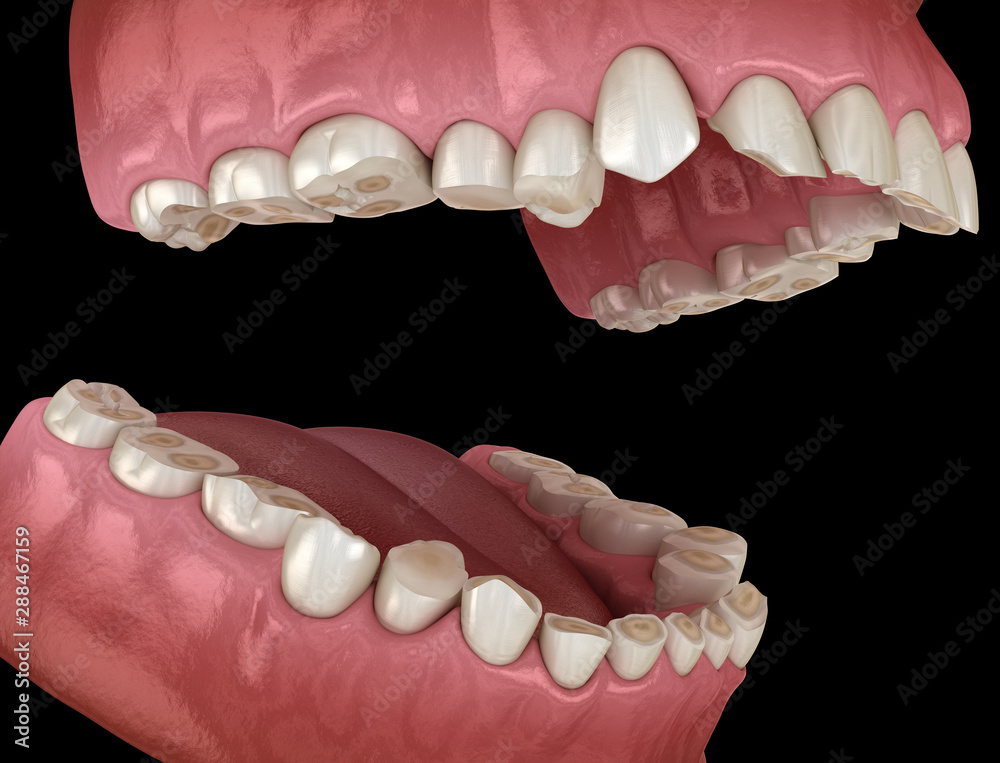 Fototapety, obrazy: Dental attrition (Bruxism) resulting in loss of tooth tissue.  Medically accurate tooth 3D illustration