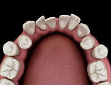 Abnormal Teeth Position, Ortho...