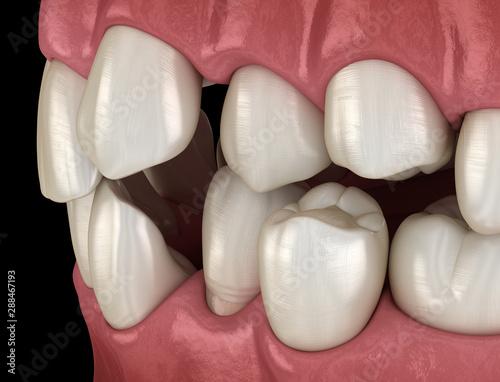 Abnormal teeth position, orthodontic concept Wallpaper Mural