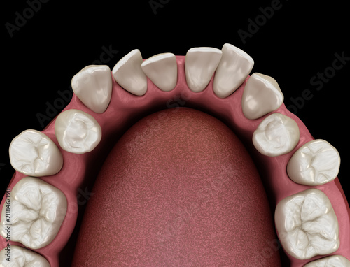 Photo Abnormal teeth position, orthodontic concept