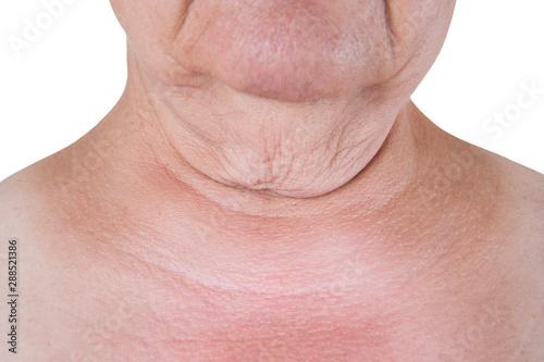 Valokuvatapetti Flabby skin on the neck of an elderly woman isolated on white background