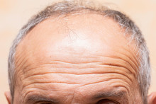 A Closeup View On The Lines And Wrinkles In The Forehead Of An Older Man In His Fifties, Natural Aging Of The Human Body With Receding Grey Hair.