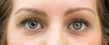 A Closeup View On The Green Eyes Of A Pretty Caucasian Girl With One Pupil Larger Than The Other. A Common Condition Called Anisocoria Affecting A Fifth Of The Population.