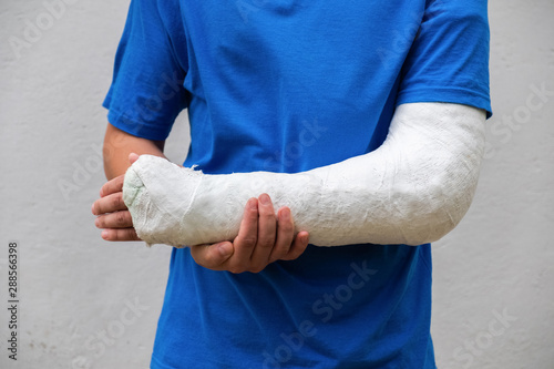 Man with broken arm wrapped medical cast plaster Canvas Print