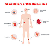 Diabetes Medical Poster