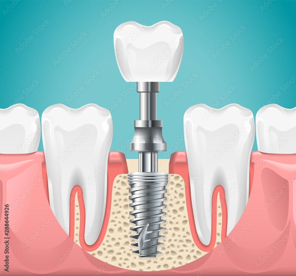Fototapeta Dental surgery. Tooth implant cut vector illustration. Healthy teeth and dental implant, stomatology poster. Implant dental metal screw in gum