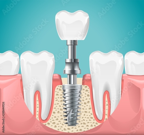 Dental surgery Canvas Print