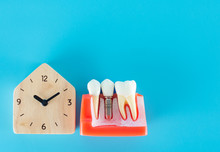 Wooden Clock With Dental Implant Model On Blue Background.