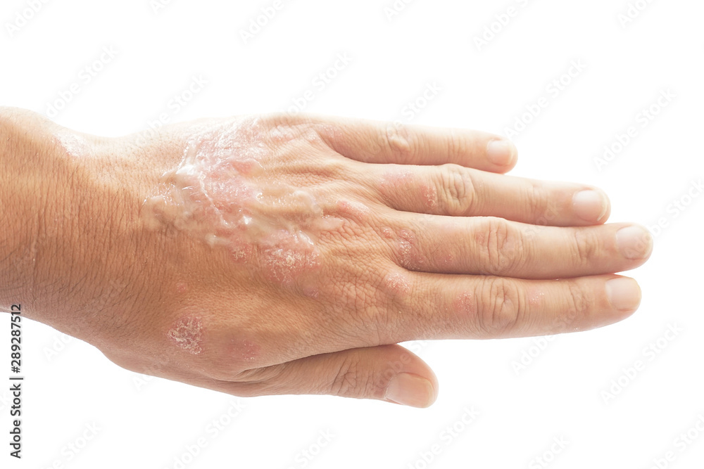 Fototapeta Psoriasis vulgaris and fungus on the man hand with plaque, rash and patches on the skin, isolated on white background. Autoimmune genetic disease.