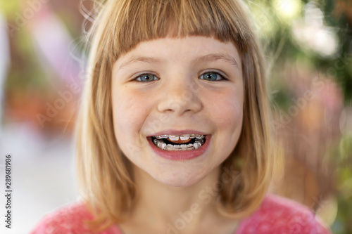 Portrait of smiling little girl with braces Fototapet