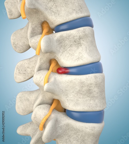 Human lumbar spine model with herniated disc Fototapet