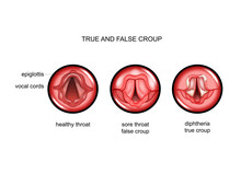 Diphtheria. True And False Croup