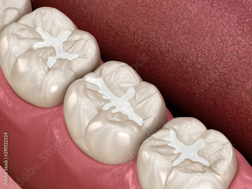 Molar Fissure dental fillings, Medically accurate 3D illustration of dental conc Canvas Print