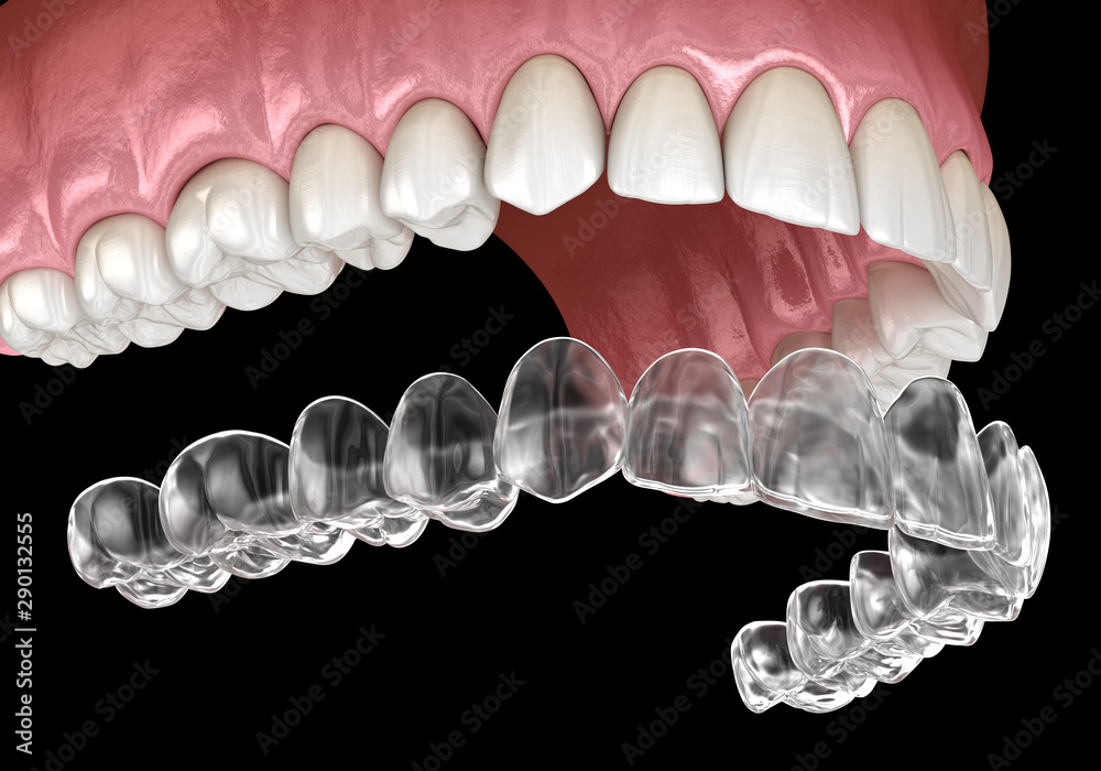 Fototapety, obrazy: Invisalign braces or invisible retainer. Medically accurate dental 3D illustration