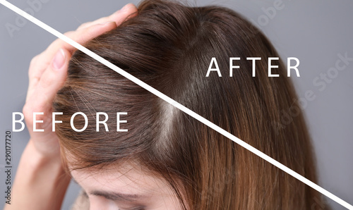 Fotomural  Woman before and after hair loss treatment on grey background