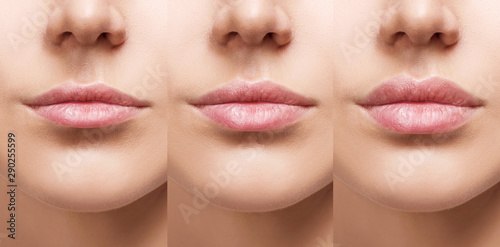Lips of young woman before and after augmentation. Canvas Print
