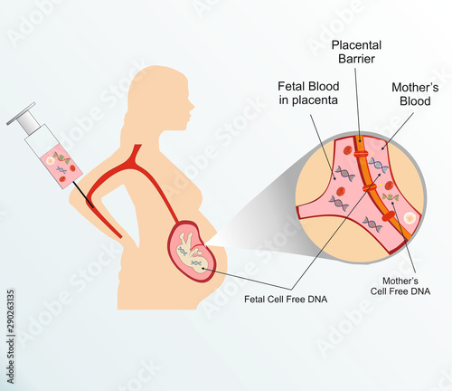 Fototapeta illustration showing movement of fetal cell free DNA to mother's blood