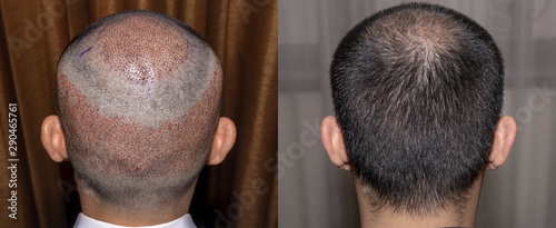 Obraz na plátne  Back view of a man's head with hair transplant surgery with a receding hair line