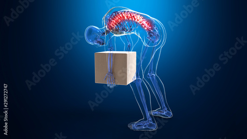 Photo  The Spondylosis in human for miss action pickup that main spine show red color f