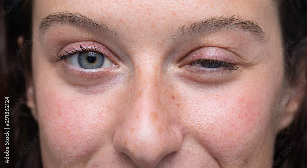 Fototapety, obrazy: close up on blue eyes girl face with one half closed eye, Myasthenia gravis (MG) disease