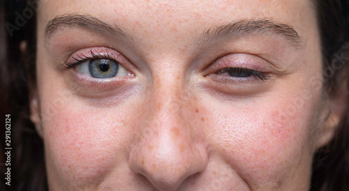 Fotografiet  close up on blue eyes girl face with one half closed eye, Myasthenia gravis (MG)
