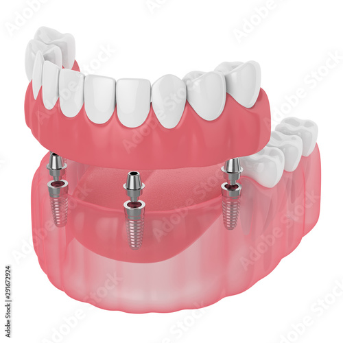 Photo 3d render of implant partial denture