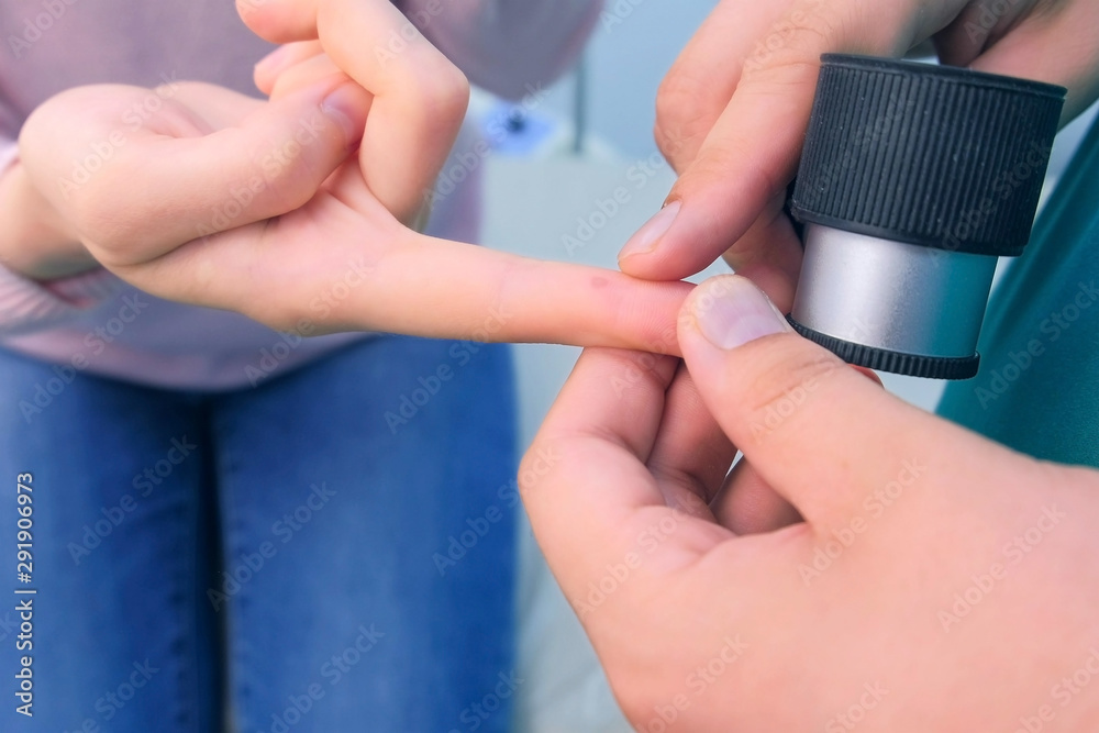 Fototapeta Surgeon examines wart on finger of woman patient using dermatoscope magnifier before laser removing. Inspecting verruca on hand, cure and treatment. One day surgery concept.