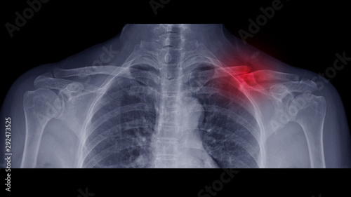 Film X-ray shoulder radiograph show Left collar bone broken (clavicle fracture) from traffic accident Wallpaper Mural