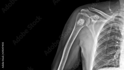 Photo  Film X ray shoulder radiograph show Enchondroma disease at arm bone