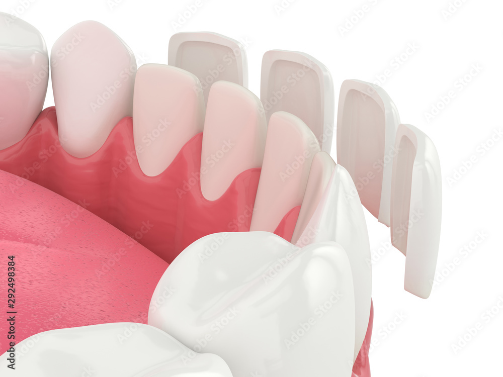Fototapeta 3d render of lower jaw with veneers