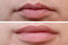 Female Lips Before And After A...