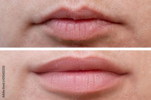 Female lips before and after augmentation, the result of using hyaluronic filler Wallpaper Mural