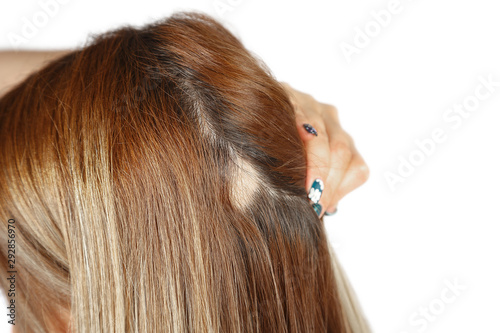 30 year old Caucasian woman with spot alopecia, bald spot on her head Wallpaper Mural