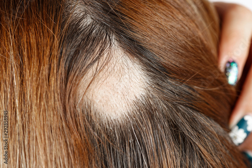 30 year old Caucasian woman with spot alopecia, bald spot on her head Canvas Print