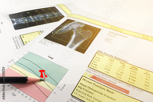 Hip and Spine Bone mineral density (BMD) DEXA densitometry hip scan Canvas-taulu