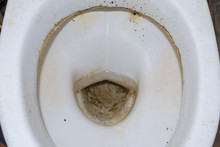 Dirty Toilet Close Up. Soiled Toilet.