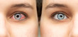A before and after view of a beautiful caucasian girl who was suffering from red eye (conjunctivitis), results of successful antibiotic eye drops treatment.