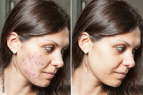 A young woman with brunette hair shows the before and after results of successful acne treatment, spots and scars have been removed through the application of prescribed topical creams Canvas