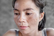 canvas print picture - closeup Asian woman face having skin problem with dark spot, freckle from uv ligh