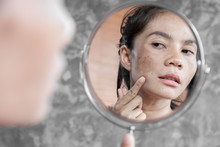 Asian Woman Having Skin Proble...