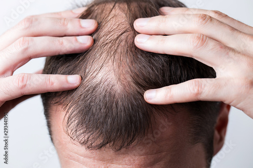 Close-up balding head of a young man on a white isolated background Wallpaper Mural