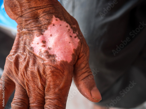 Fototapeta White spotted skin disease on arms asian man