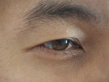 Drooping Eyelid Or Ptosis And Dry Eye In Asian Man Cause Of Muscles Lifting The Eyelid Treatment By Surgery Use For Health Care Concept.