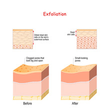 Cross-section Of Skin Layers B...