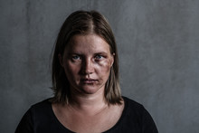 Portrait Of The Woman Victim Of Domestic Violence And Abuse