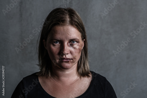 Portrait of the woman victim of domestic violence and abuse Canvas Print