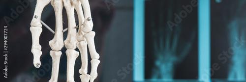 Fototapeta röntgenbild von einer hand